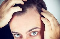 top-5-symptoms-dandruff-2
